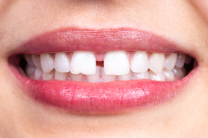 WHAT TO DO WHEN YOU BREAK OR CHIP YOUR TEETH